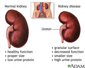 Kidney Disease - Normal Vs Disease