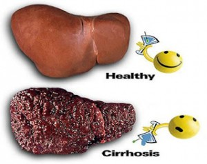 How To Treat Cirrhosis Of The Liver Naturally