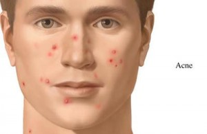 You can cure Acne Naturally
