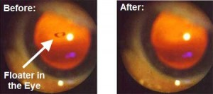 Eye Floaters - Result of Natural Treatment