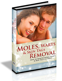 Download Moles Removal Ebook