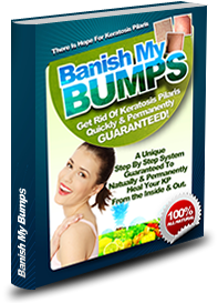 Banish My Bumps to Cure Keralatosis Pilaris Review