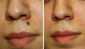 Before & After Moles Removal Natural Treatment