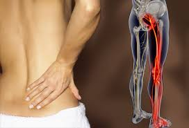 sciatica nerve symptoms,causes