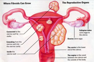 disease of the reproductive system – applecool, Muscles