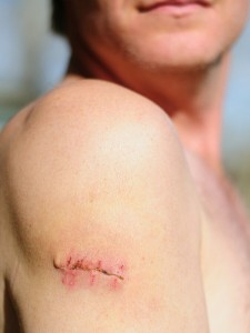Lipoma Removal : How To Cure Lipoma Lumps without Surgery