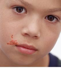 impetigo symptoms