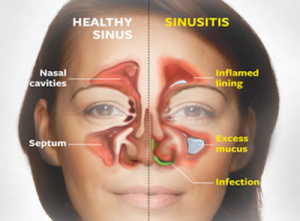Curing Sinus Problems Naturally